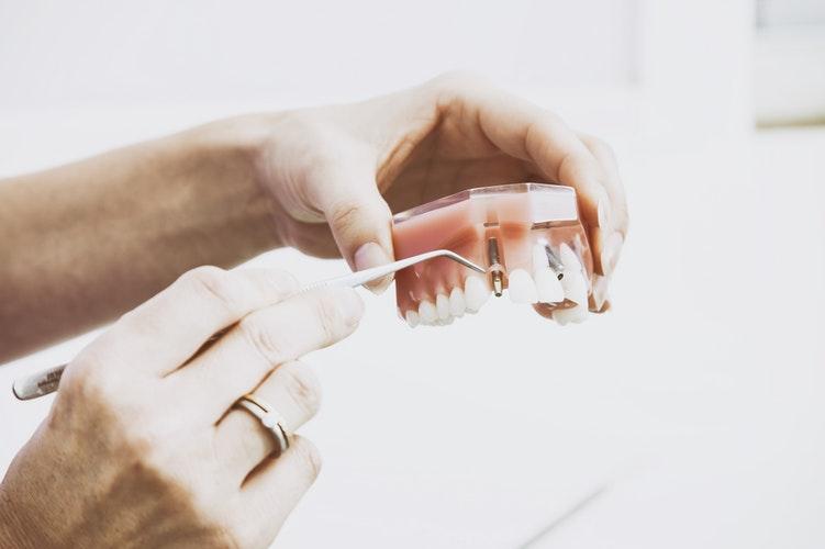 photo-dental -care